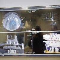 CBCT – 3D – Radiologie