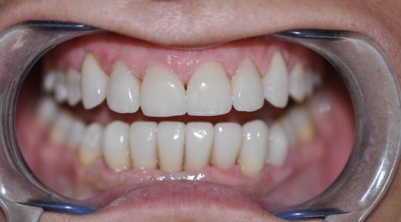Caz rezolvare anomalie dento-maxilara cu spatiere prin fatete E-max