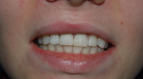 Caz stomatologie estetica - albire dentara cu lampa ZOOM