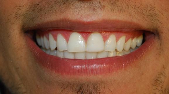Caz albire dentara cu lampa ZOOM