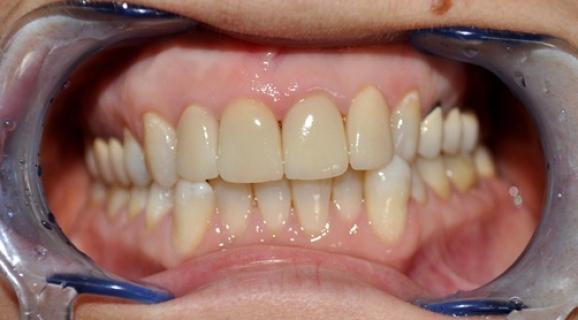 Caz reabilitare orala in zona frontala - coroane si fatete E-max
