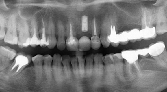 Caz implant imediat