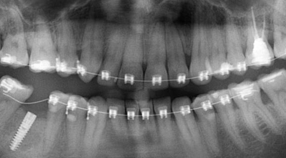 Caz reabilitare orala complexa - ortodontie preprotetica