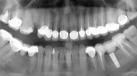 Caz rezolvare edentatie unidentara - implant Ankylos