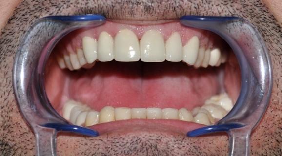 Caz complex reabilitare orala totala
