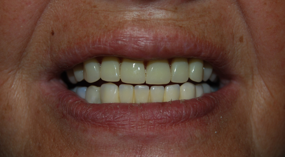 Caz reabilitare orala complexa - refacerea zonelor masticatorii