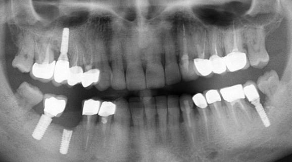 Caz implant Straumann Roxolide Sla Active