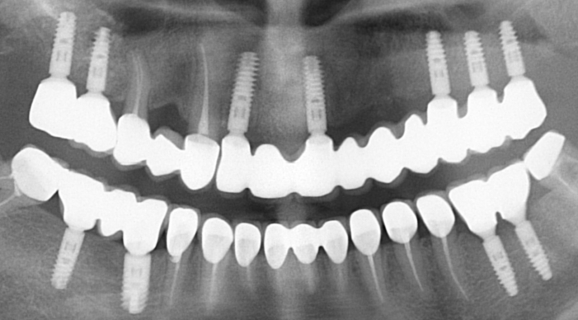 Reabilitare orala totala cu implanturi Ankylos