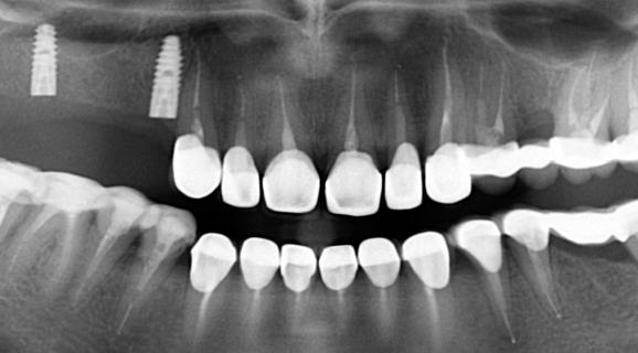 Caz reabilitare orala complexa - amelogeneza imperfecta