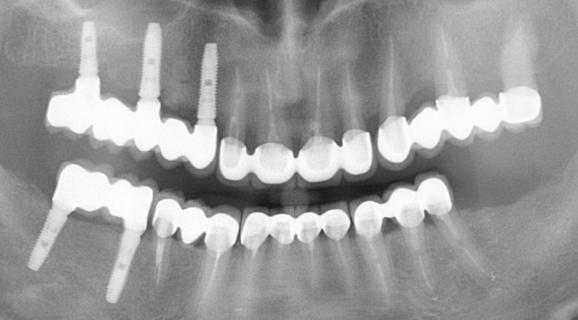 Reabilitare orala complexa cu implanturi Dentium Superline