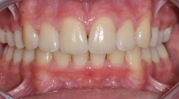 Caz ortodontie - inghesuire dentara si ocluzie adanca acoperita