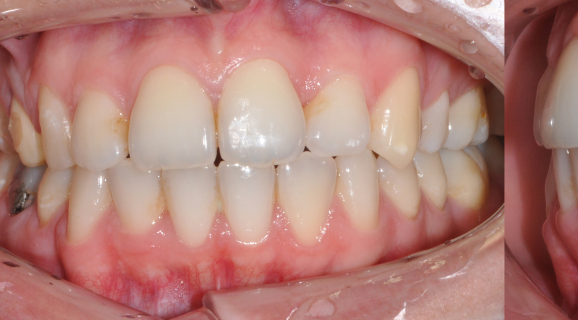 Caz ortodontie - rezolvare inghesuire dentara